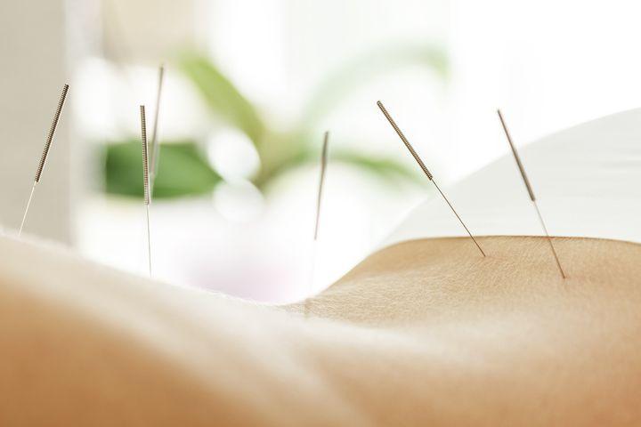 Lutter contre l'insomnie par l'acupuncture