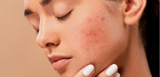 Vaincre l'acné pour avoir une peau parfaite